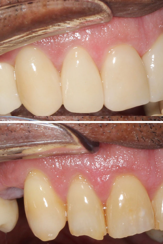 Implant crown and veneers