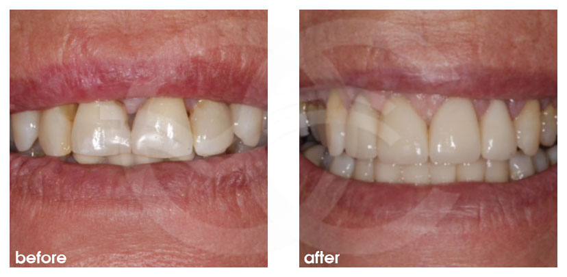 Cosmetic Dentistry Before After Teeth Restoration with Crowns. Ocean Clinic Marbella