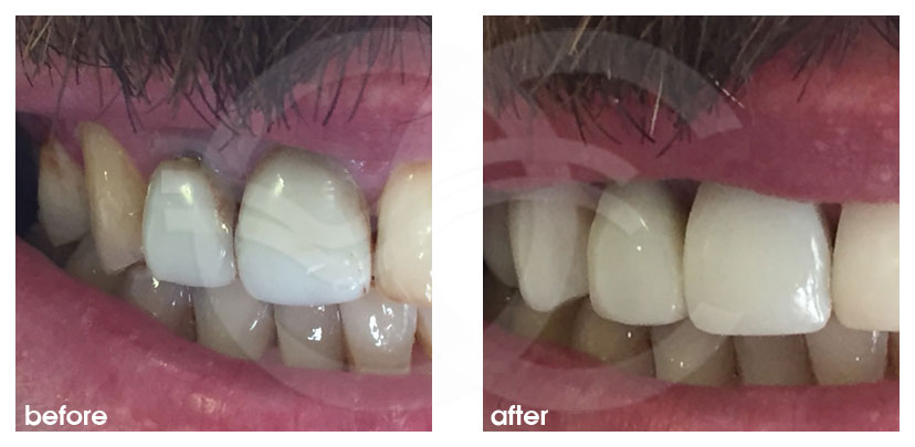 Cosmetic Dentistry Before After difference in color of teeth solved. Ocean Clinic Marbella