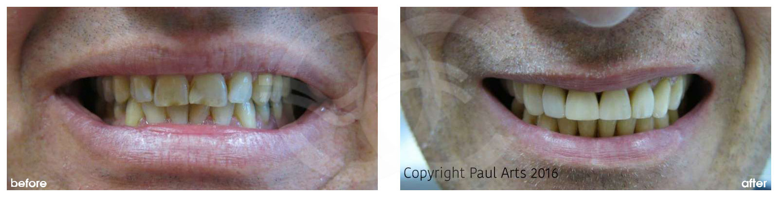 Cosmetic Dentistry Before After Discolored Chipped Teeth Treated. Photo frontal Ocean Clinic Marbella Spain