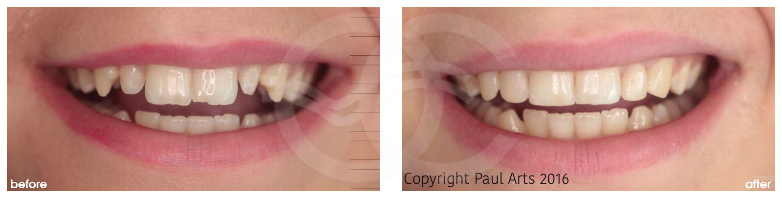 Cosmetic Dentistry Before After Bonding Composite. Photo frontal Ocean Clinic Marbella Spain