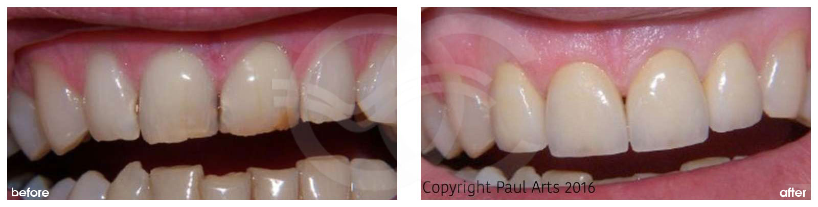 Cosmetic Dentistry Before After Discolored and Chipped Teeth Improved. Photo frontal Ocean Clinic Marbella Spain