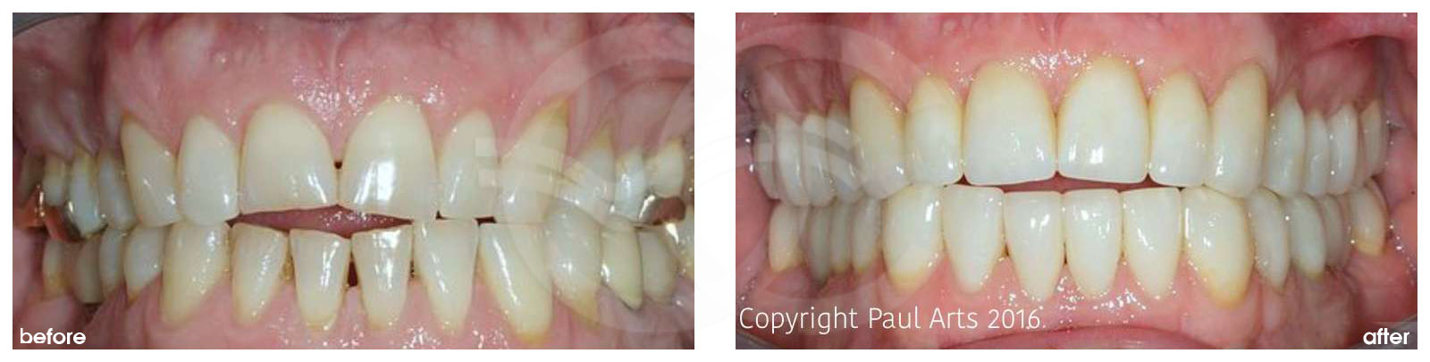 Cosmetic Dentistry Before After Extensive Treatment of Heavy Grinder. Photo frontal Ocean Clinic Marbella Spain
