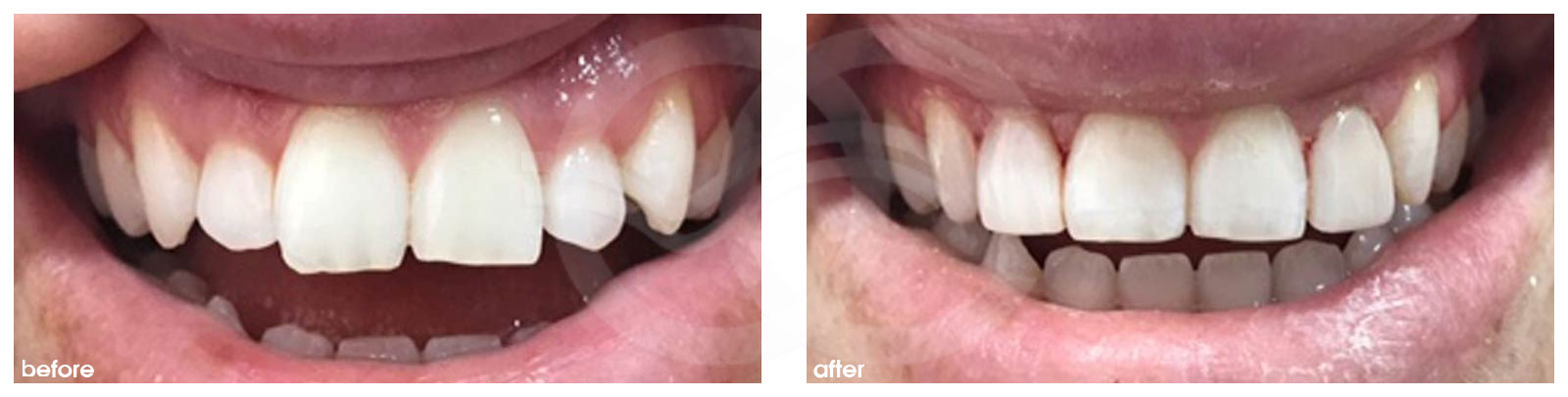 Cosmetic Dentistry Before After Gum Line Corrected. Photo frontal Ocean Clinic Marbella Spain