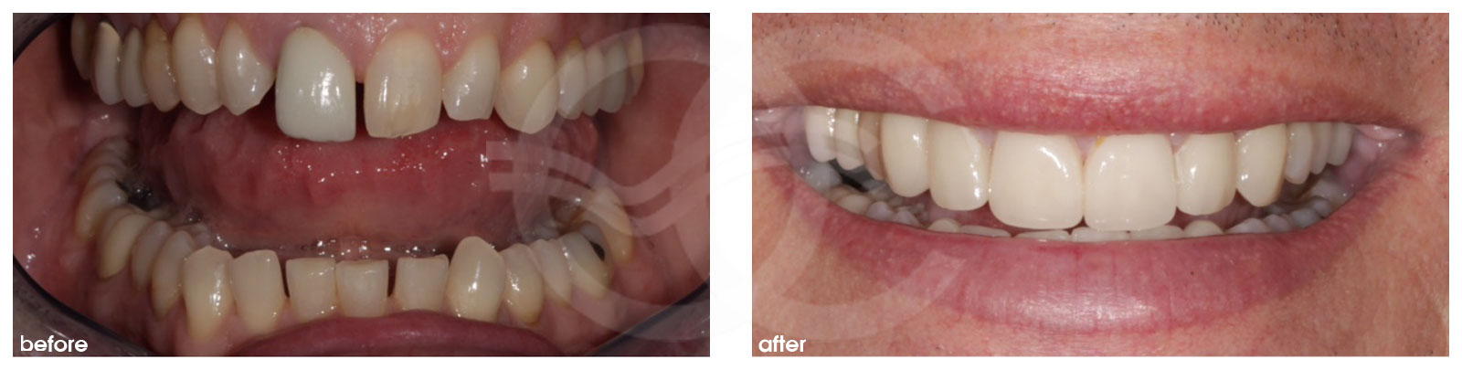 Cosmetic Dentistry Before After Porcelain Veneers. Photo frontal Ocean Clinic Marbella Spain