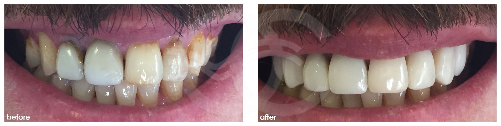 Cosmetic Dentistry Before After Difference in color of teeth solved. Photo frontal Ocean Clinic Marbella Spain
