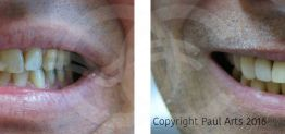 Cosmetic Dentistry Before and After Photo Case 01 Marbella Ocean Clinic
