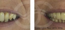 Cosmetic Dentistry Before and After Photo Case 03 Marbella Ocean Clinic