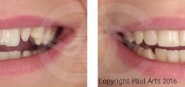 Cosmetic Dentistry Before and After Photo Case 04 Marbella Ocean Clinic