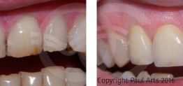 Cosmetic Dentistry Before and After Photo Case 05 Ocean Clinic Marbella