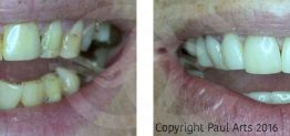 Cosmetic Dentistry Before and After Photo Case 06 Marbella Ocean Clinic