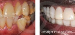 Cosmetic Dentistry Before and After Photo Case 07 Marbella Ocean Clinic