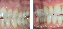 Cosmetic Dentistry Before and After Photo Case 08 Marbella Ocean Clinic