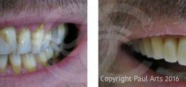 Cosmetic Dentistry Before and After Photo Case 10 Marbella Ocean Clinic