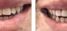 Cosmetic Dentistry Before and After Photo Case 11 Marbella Ocean Clinic