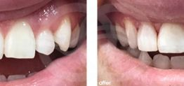 Cosmetic Dentistry Before and After Photo Case 12 Marbella Ocean Clinic
