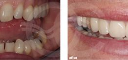 Cosmetic Dentistry Before and After Photo Case 13 Marbella Ocean Clinic