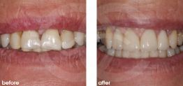 Cosmetic Dentistry Before and After Photo Case 14 Marbella Ocean Clinic