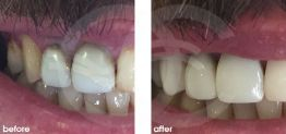 Cosmetic Dentistry Before and After Photo Case 15 Marbella Ocean Clinic