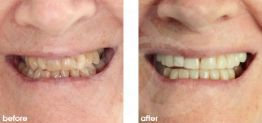 Cosmetic Dentistry Before and After Photo Case 16 Marbella Ocean Clinic