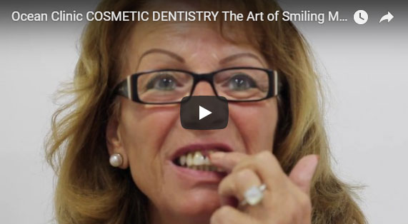 Cosmetic Dentistry Video Dental Crowns Procedure Ocean Clinic Marbella