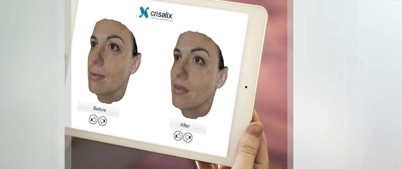 Una nueva era en la consulta de cirugía plástica Marbella Ocean Clinic