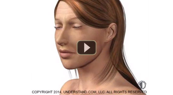 Deep Chemical Peeling 3D Animation Marbella Ocean Clinic