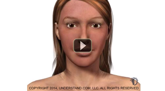 Deep Chemical Peeling 3D Animation Medium Peels Marbella Ocean Clinic