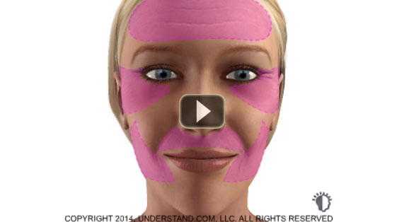 Deep Chemical Peeling 3D Animation Laser Marbella Ocean Clinic