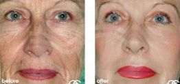 Deep Chemical Peeling Before After Chemical Peel Photo Ocean Clinic case 01 Marbella