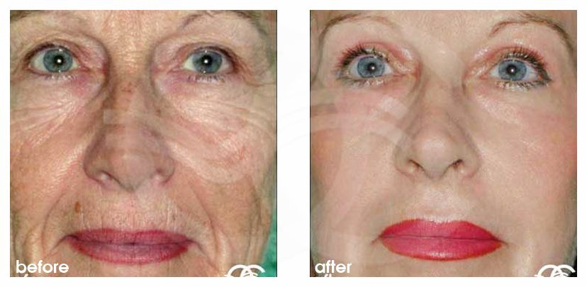 Peeling profundo ROSTRO COMPLETO before after forntal