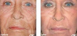 Deep Chemical Peeling Before After Chemical Peel Photo Ocean Clinic case 02 Marbella