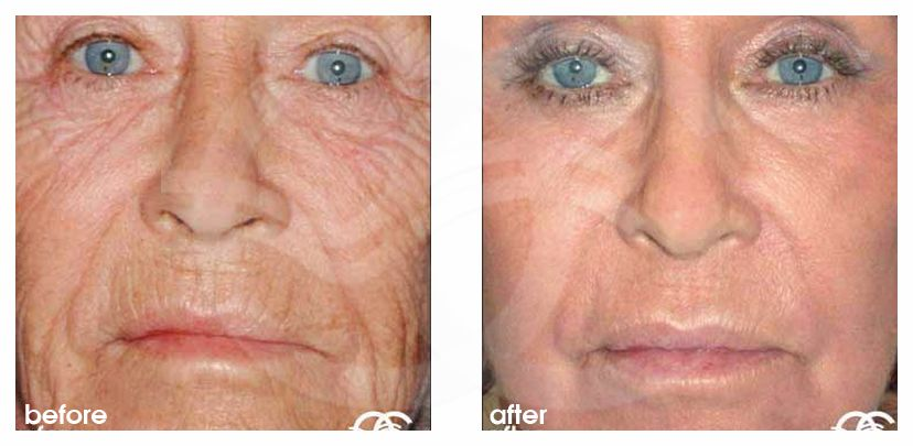 Chemical Peel Before After Deep Peeling Photo frontal Marbella Ocean Clinic