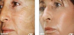 Deep Chemical Peeling Before After Chemical Peel Photo Ocean Clinic case 03 Marbella