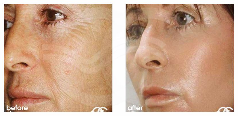 Deep Peeling EXOPEEL before after forntal