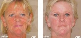 Deep Chemical Peeling Before After Chemical Peel Photo Ocean Clinic case 04 Marbella
