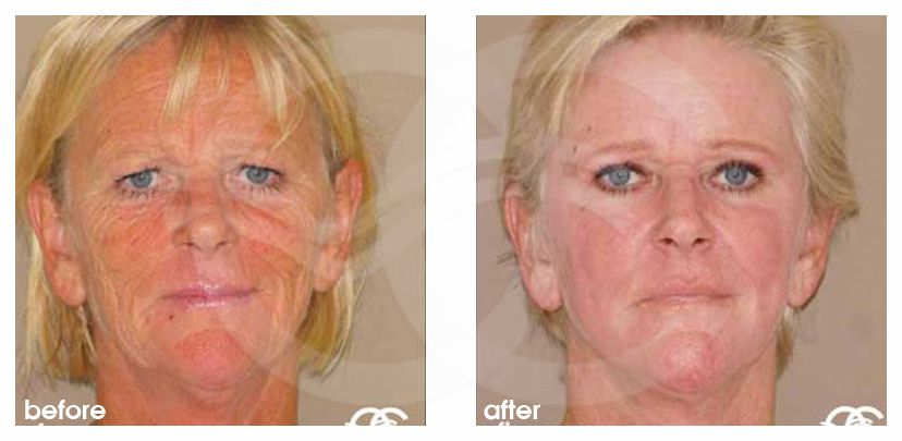 Chemical Peel Before After Baker-Gordon Photo frontal Marbella Ocean Clinic
