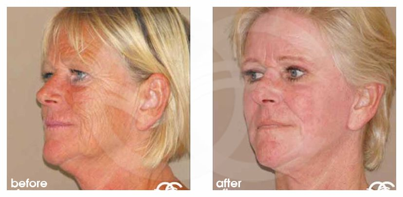 Chemical Peel Before After Baker-Gordon Photo side Marbella Ocean Clinic