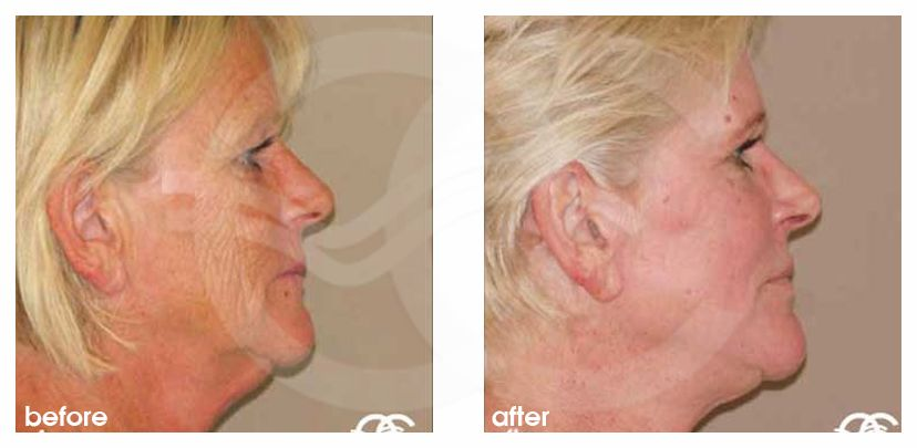 Chemical Peel Before After Baker-Gordon Photo profile Marbella Ocean Clinic