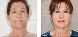 Deep Chemical Peeling Before After Chemical Peel Photo Ocean Clinic case 05 Marbella