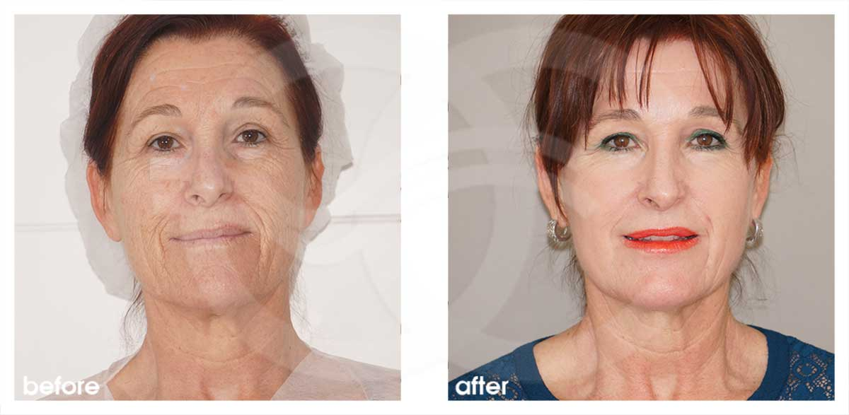 Chemical Peel Before After Phenol Peel Photo frontal Marbella Ocean Clinic