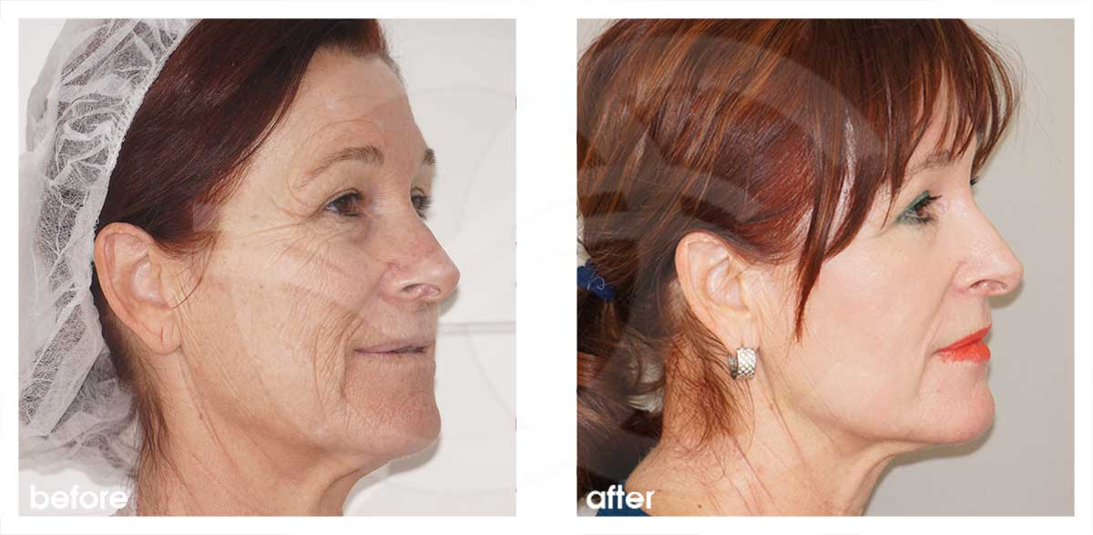 Chemical Peel Before After Phenol Peel Photo side Marbella Ocean Clinic