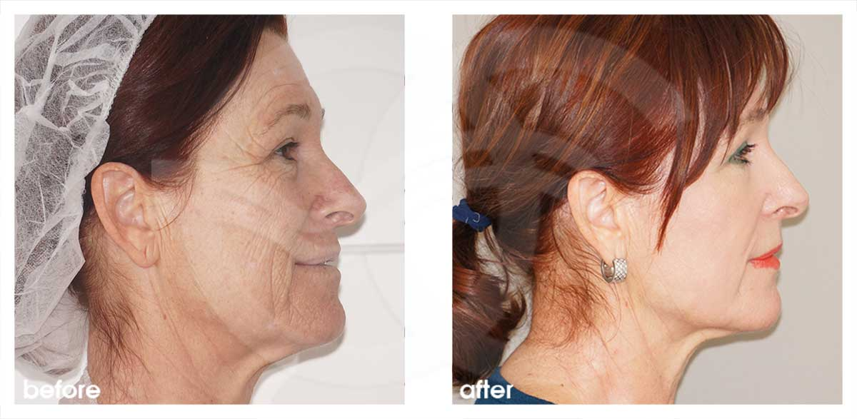 Chemical Peel Before After Phenol Peel Photo profile Marbella Ocean Clinic