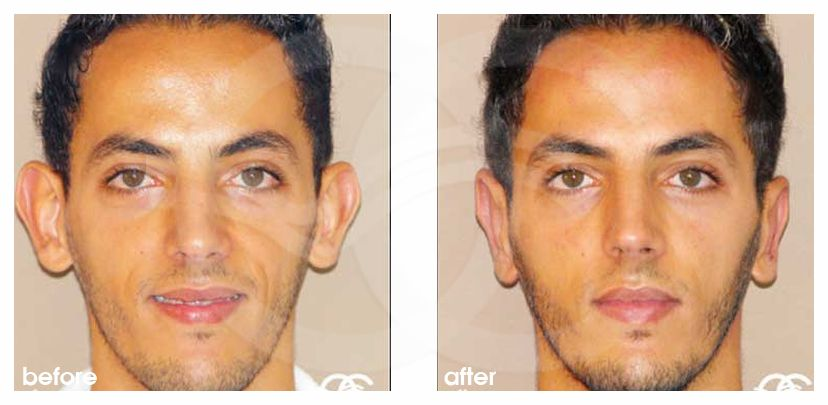 Otoplasty before and after real clinical case 02