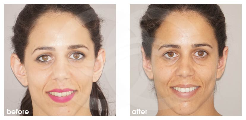 Otoplasty before and after real clinical case 01