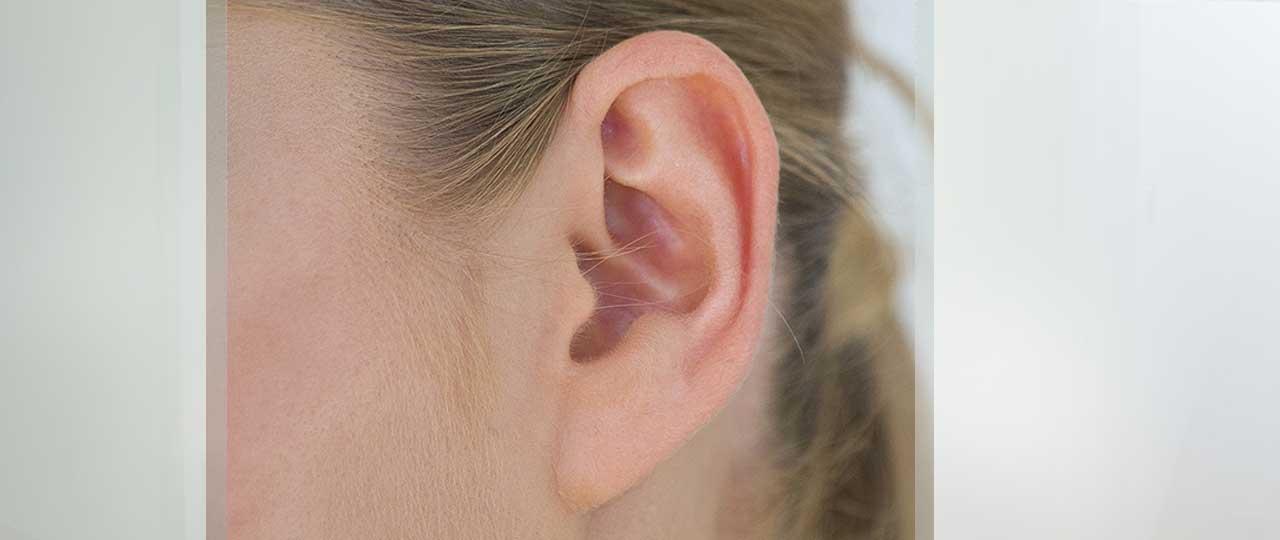 Ohrenkorrektur Otoplastik Ocean Clinic Marbella Spanien