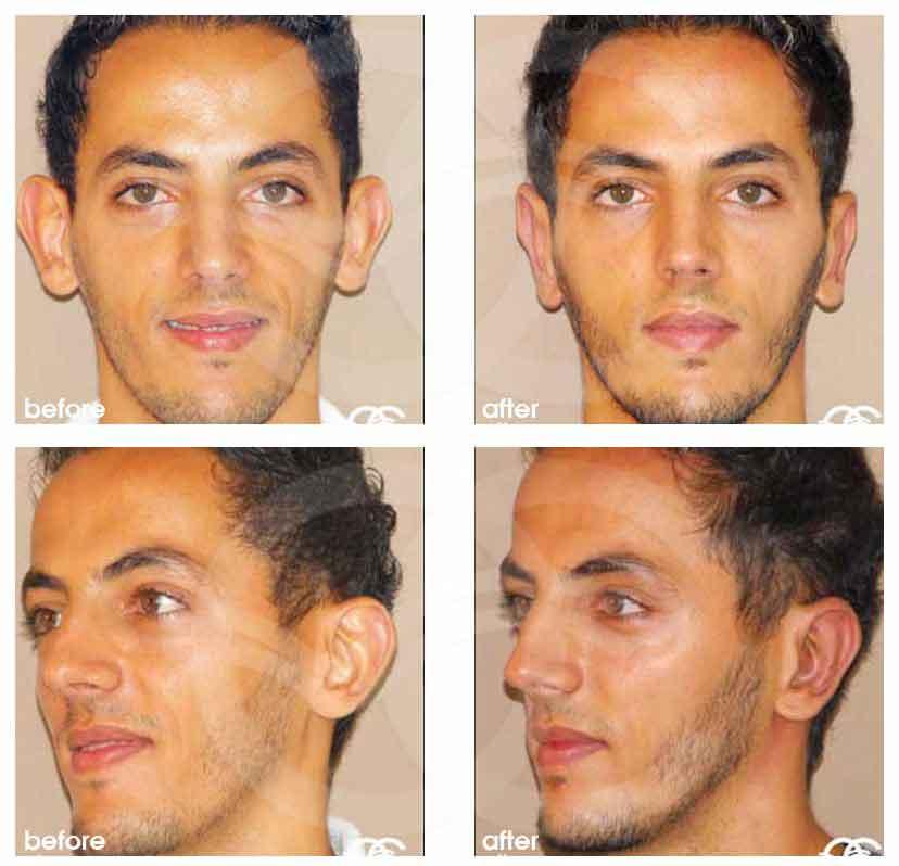 Cirugía de Orejas La otoplastia Ocean Clinic Marbella Málaga