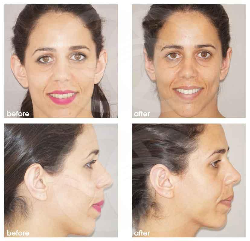Chirurgie des Oreilles Ocean Clinic Marbella Espagne