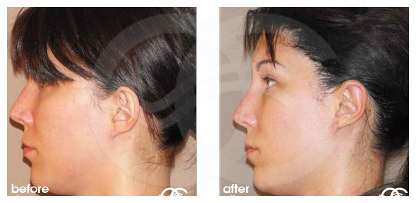 Ear Correction Before After Photo Ocean Clinic Marbella Spain