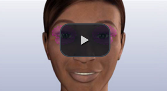 Eyelid Surgery Animation Blepharoplasty Upper. Ocean Clinic Marbella